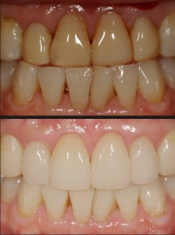 cosmetic dentistry includes implants, crowns, whitening / bleaching, limited orthodontics, white restorations, and porcelain veneers