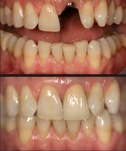 implant dentistry replaces the roots of lost or broken and damaged teeth
